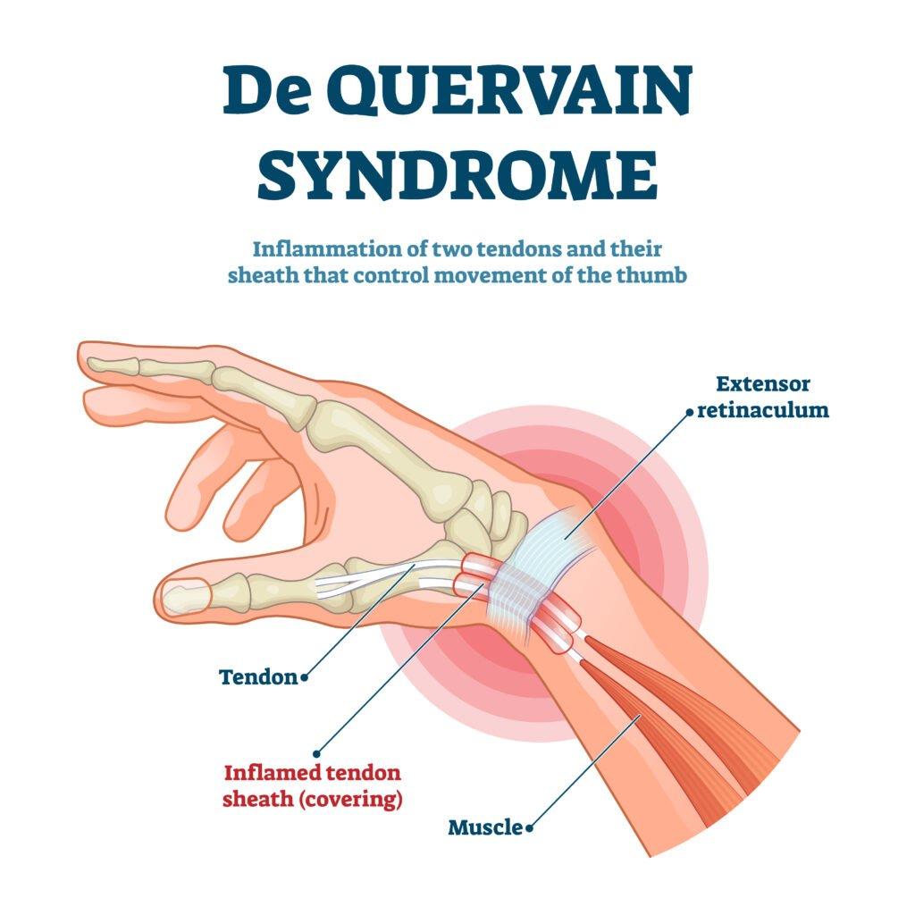 De Quervain Syndrome Vector Illustration
