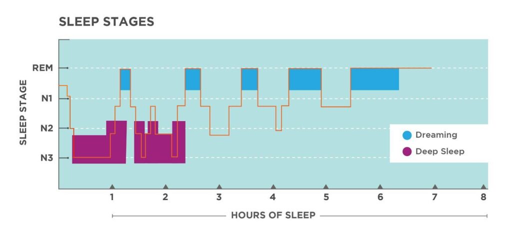 Graph of the different stages of sleep