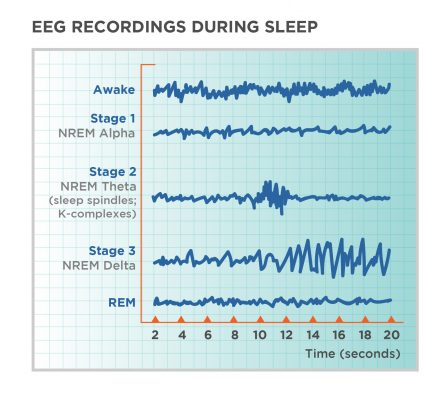 Graph of brain waves during sleep